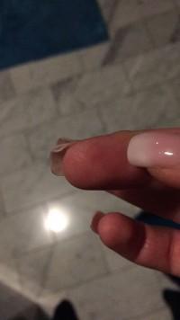 Rollnägel Spröde Nägel lösen sich in Nagelmodellagen