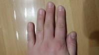 linke Hand aktuell Welche Modellage ist hier machbar/sinnvoll ? in Nägel kauen