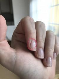 Relativ Acrylnägel entfernen? - Acrylnägel PS36