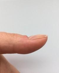 Wächst nicht nach fingernagel Neuer Nagel