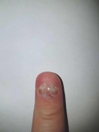 Wächst nach fingernagel nicht Fingernagel löst