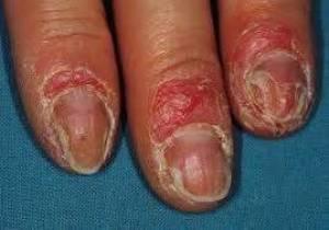 Gribok der Nägel und der Krankheit von ihm
