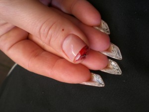 Zehennagel Abgerissen Blutet