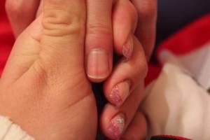 Nagel Grauer Strich in der Mitte des Nagels in Nagelkrankheiten
