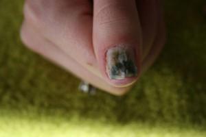 plaknagels3 Grüner Nagel unter Kunstnägeln in Nagelkrankheiten